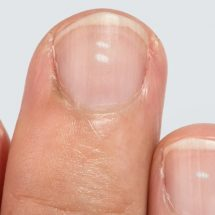 8 Health Warnings to Never Ignore From Your Fingernails