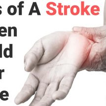 Signs of A Stroke Women Should Never Ignore