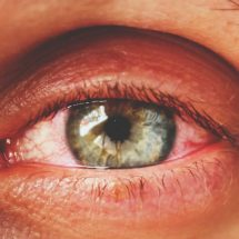5 Signs You Are Getting Pink Eye