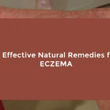 15 Effective Natural Remedies for Eczema