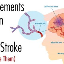 5 Supplements That Can Help Prevent a Brain Stroke