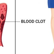 10 Early Warning Symptoms of a Blood Clot You Should Never Ignore