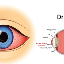4 Easy Ways to Heal Dry Eyes Naturally
