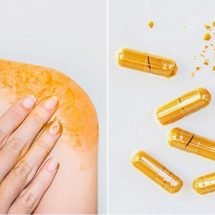 Can Turmeric Help Treat Psoriatic Arthritis?