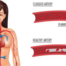 How to Flush Clogged Arteries Naturally with Just Three Ingredients