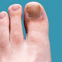 How to Prevent and Treat Toenail and Foot Fungus