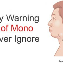7 Early Warning Signs of Mono to Never Ignore