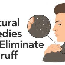 7 Natural Remedies That Eliminate Dandruff