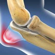 Inflammation of the elbow joint: Causes, symptoms and methods and treatment