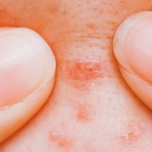 Researchers Explain What Getting Pimples Says About Your Health