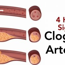 4 Hidden Signs of Clogged Arteries (And The Best Foods to Prevent It)