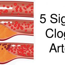 5 Signs Of Clogged Arteries