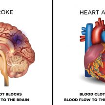 Avoid A Heart Attack or Stroke: 10 Foods to Never Ignore