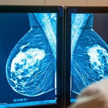 Doctors Explain Why A Mammogram Is the Best Way to Detect Breast Cancer