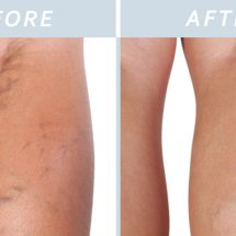 My Grandmother Taught Me This Remedy To Eliminate Varicose Or Spider Veins. Now My Legs Look Amazing!