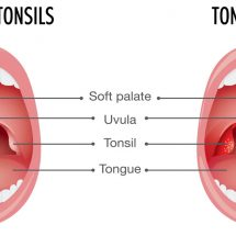 10 Early Signs of Tonsillitis (And How to Get Rid of It)