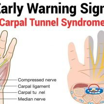 10 Early Warning Signs of Carpal Tunnel Syndrome
