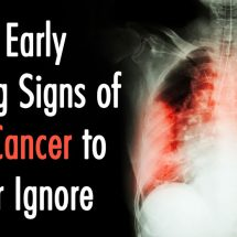 10 Early Warning Signs of Lung Cancer to Never Ignore