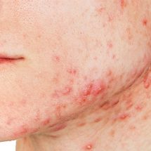 11 Ways to Get Rid of Acne Naturally