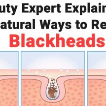 Beauty Expert Explains 15 All Natural Ways to Remove Blackheads