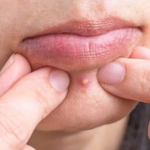 Dermatologists Explain Why You Should Never Pop Pimples