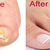 Get Rid of Nail Fungus Forever – 2 Ingredient Recipe